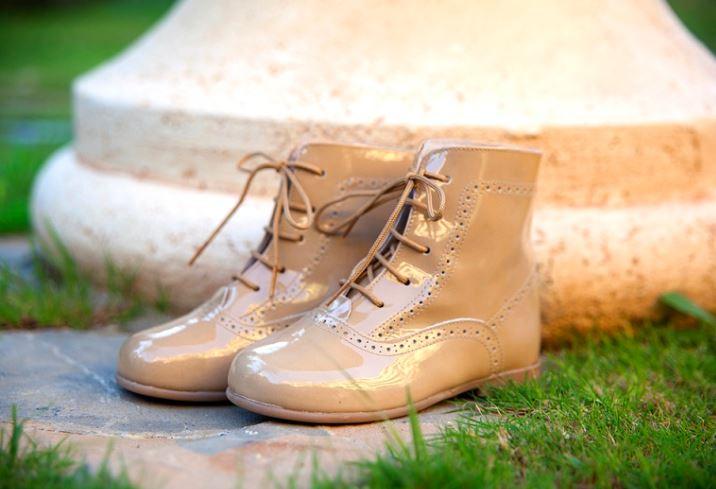 limpiar zapatos charol amarillentos