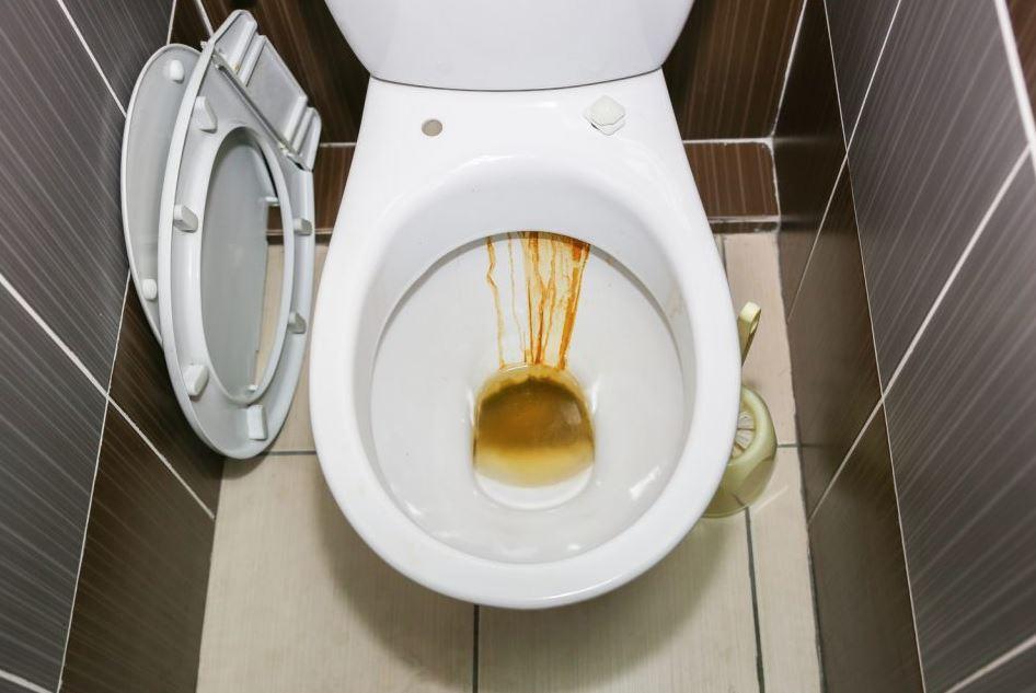 como limpiar el fondo del wc